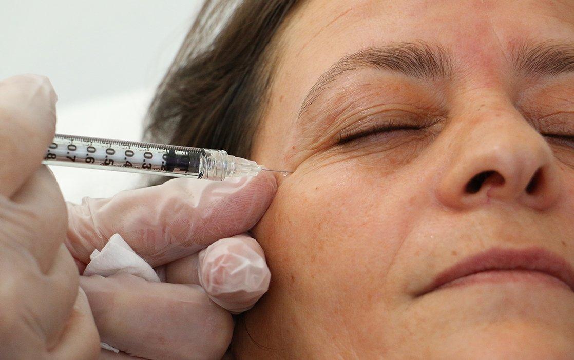 Botox e Ácido Hialurónico