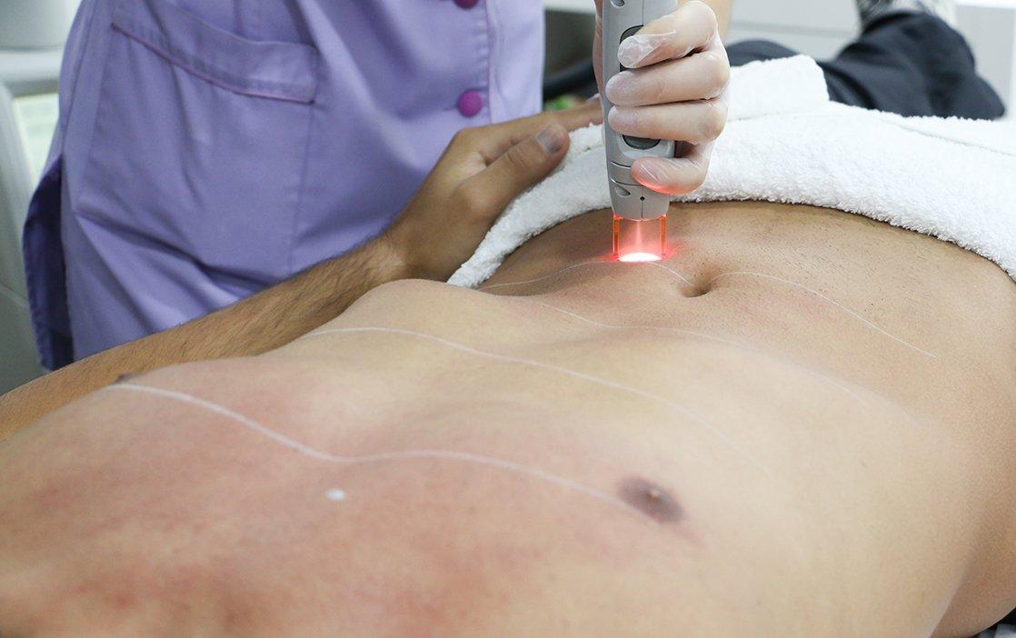 Depilação Permanente a Laser