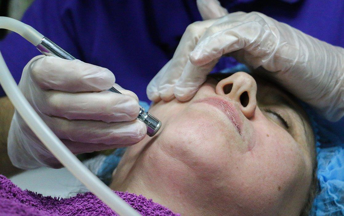 Limpeza de Pele Intensiva Facial