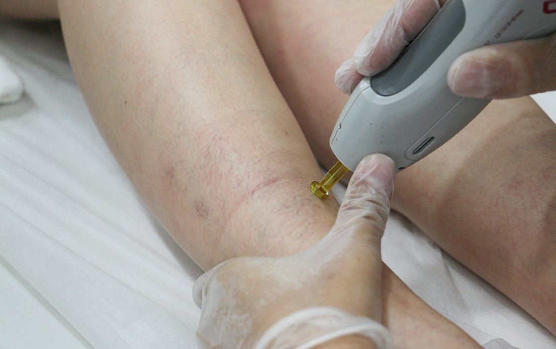 Saúde Vascular