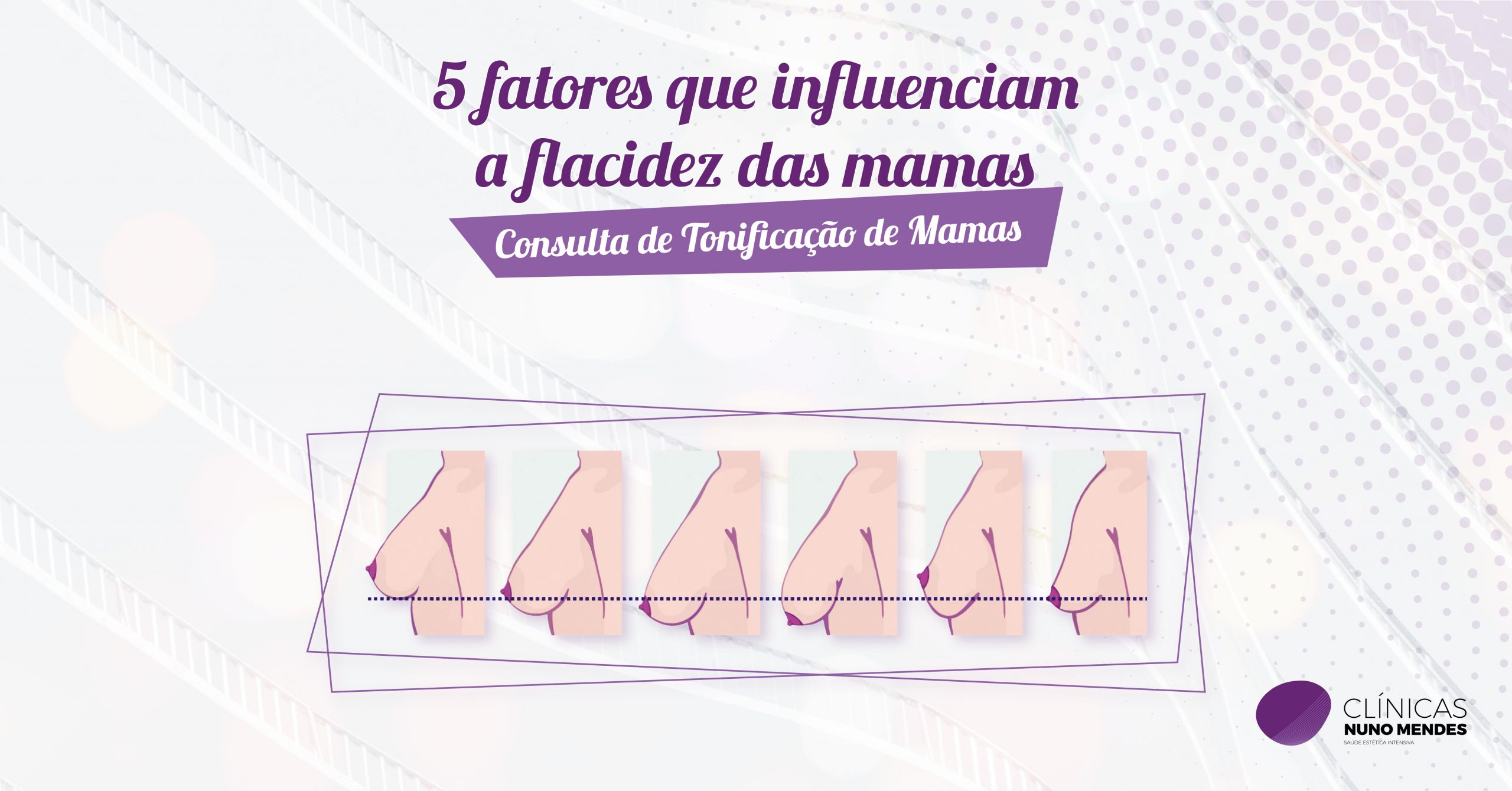 A flacidez das mamas